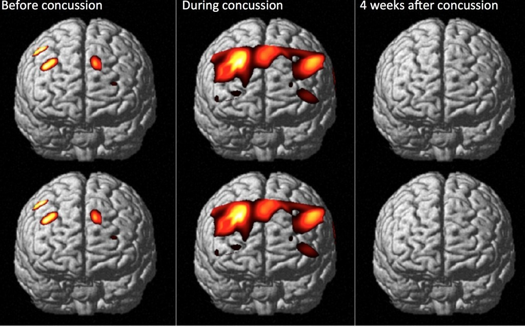 can post concussions affect an athlete's athletic Athletes with severe concussions not only have their sports and academic careers affected, but quite dramatic reductions in quality of life are possible for months at a time anything that can help reduce the time or symptoms during recovery could be very helpful for a lot of people as far as we know, we are.
